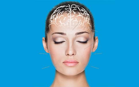 A potência da acupuntura
