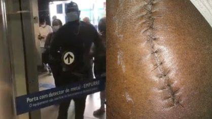 Homem diz que precisou abaixar calça para mostrar cicatriz e entrar em banco no ES