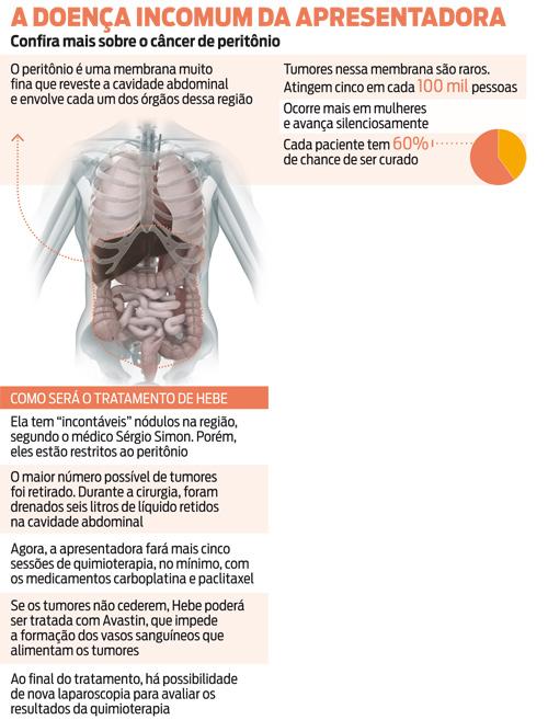 cancer membrana peritoneal