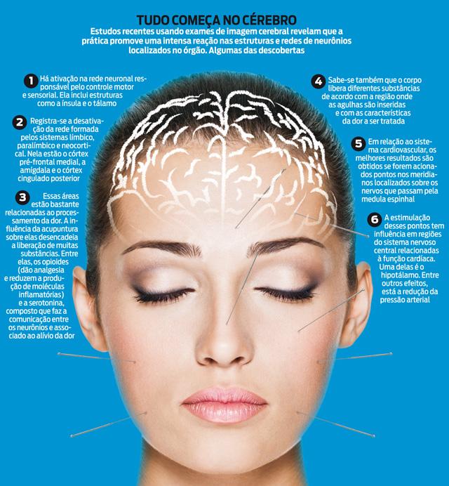 frases de acupuntura medicinal - tudo começa no cerebro